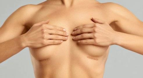 Маммопластика: виды операции, осложнения и рекомендации по реабилитации