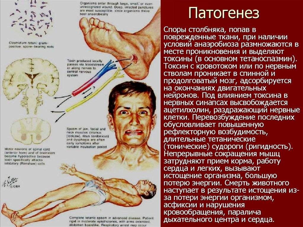 Симптомы столбняка у человека