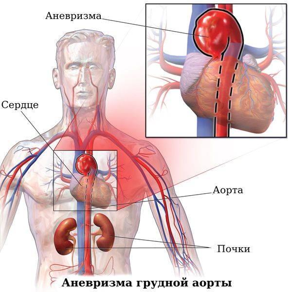 Заболевание аневризма аорты: симптомы, лечение и профилактика