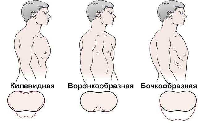 Лечение воронкообразной деформации грудной клетки у детей без операции: лфк, упражнения, массаж