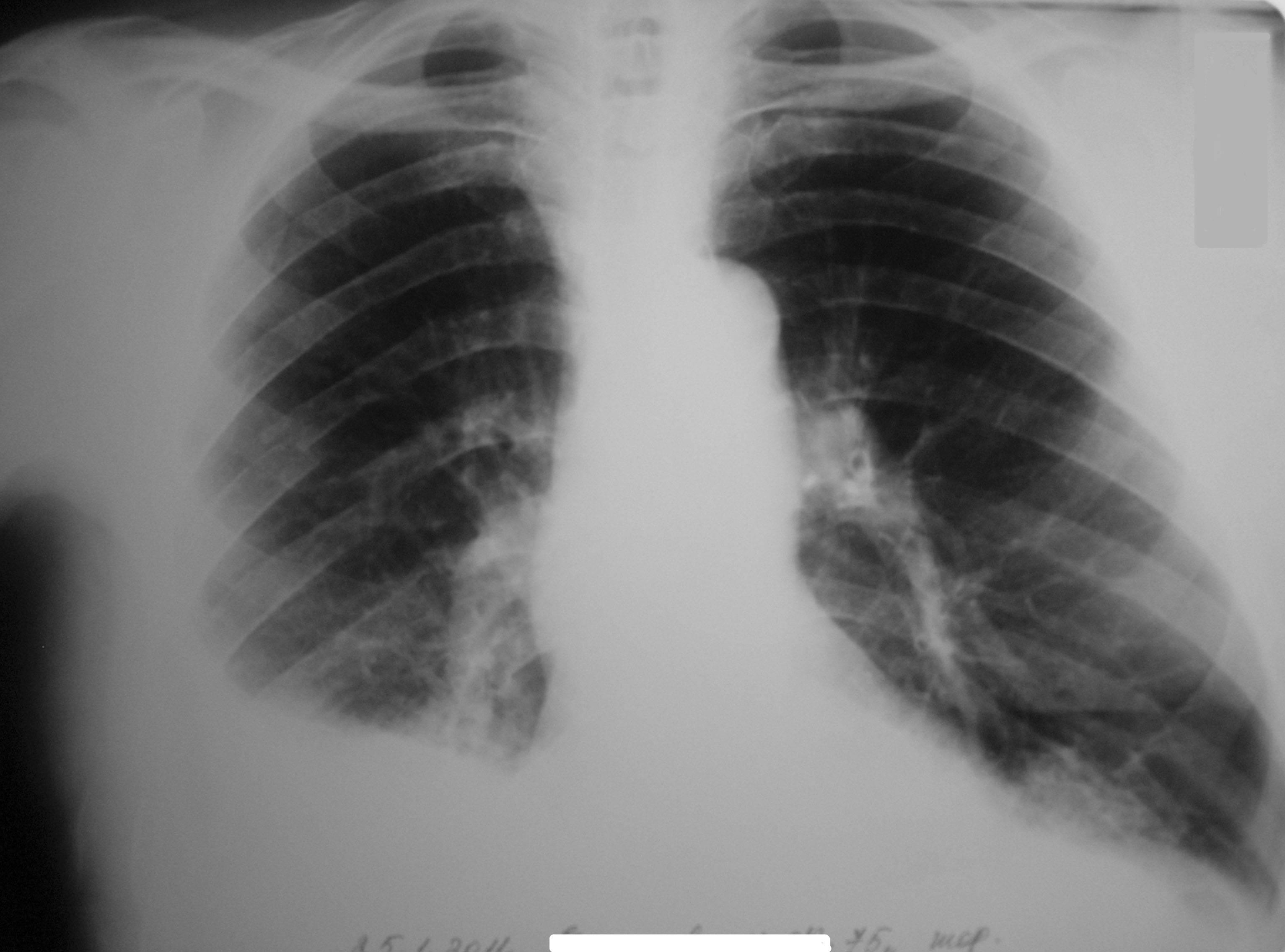 Снимки легких при туберкулезе: фото и подробные описания