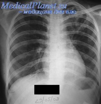 Очаговый туберкулез легких лечение