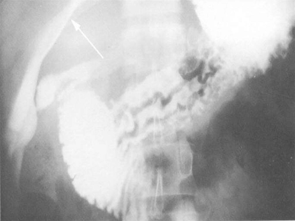 Симптомы язвенной болезни желудка, диагностика, лечение и профилактика
