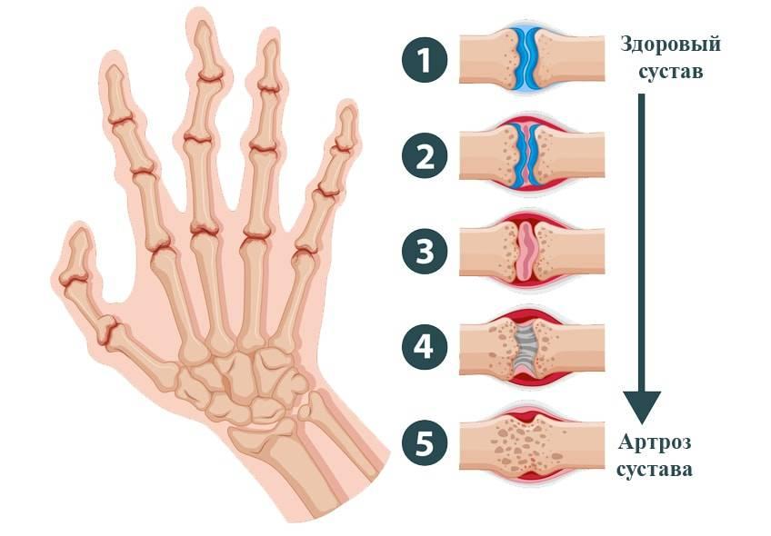 Что такое ревматоидный артрит, симптомы и лечение