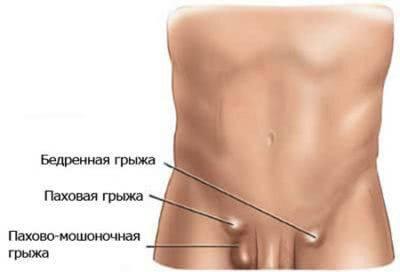 Диагностика и лечение паховой грыжи у женщин