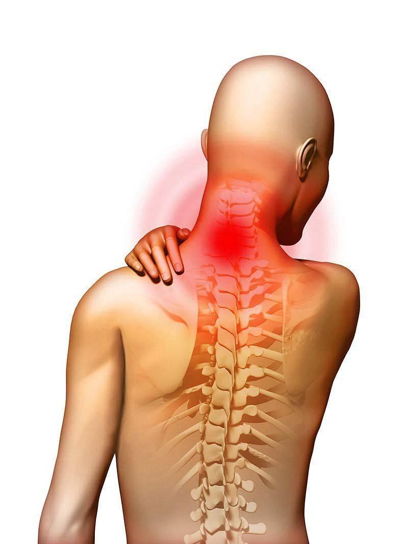 Причины, симптомы и методы лечения шейного остеохондроза