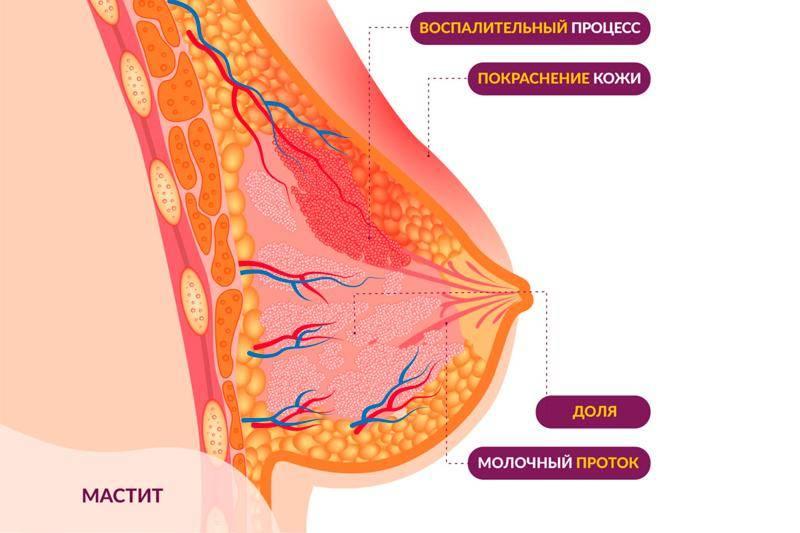 Мастит. симптомы, причины, диагностика и лечение болезни