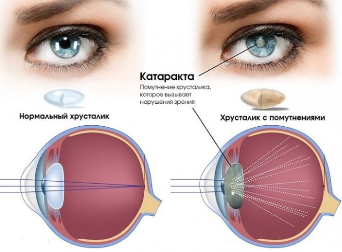 Тауфон глазные капли. инструкция по применению, польза и вред, цена, аналоги