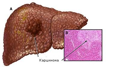 Гемангиома печени: причины, лечение, чем опасна