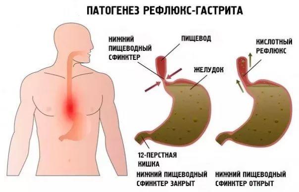 Дуоденогастральный рефлюкс: симптомы, лечение