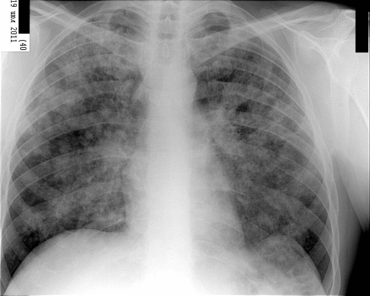 Аллергический альвеолит: симптомы и лечение