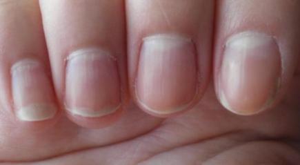 Грибок на пальцах рук: причины, симптомы, как и чем лечить