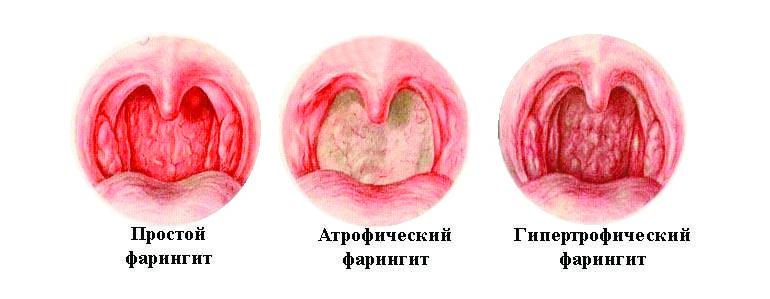 Ларингит. описание, симптомы, причины и лечение ларингита