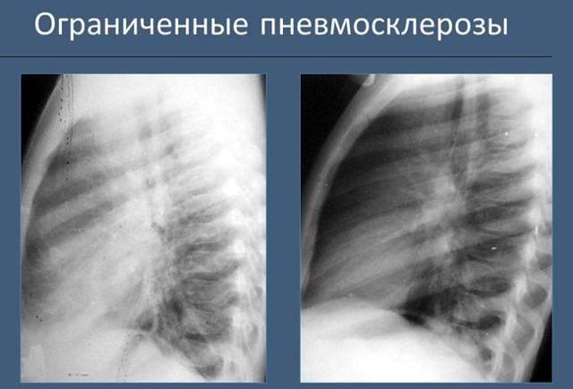 Как лечить диффузный пневмосклероз