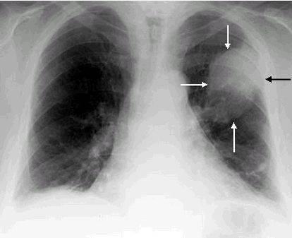 В каких случаях назначается рентген при пневмонии