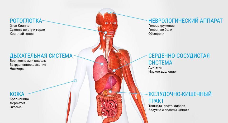 Аллергия: причины, виды, симптомы, первая помощь и лечение
