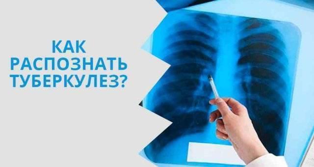 Рентгенологическое исследование при туберкулёзе
