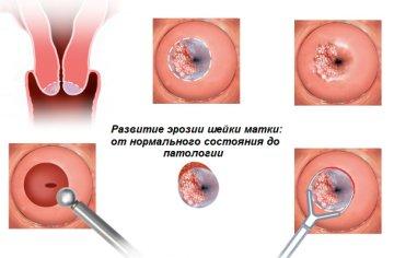 Симптомы истинной эрозии шейки матки, методы лечения и профилактика