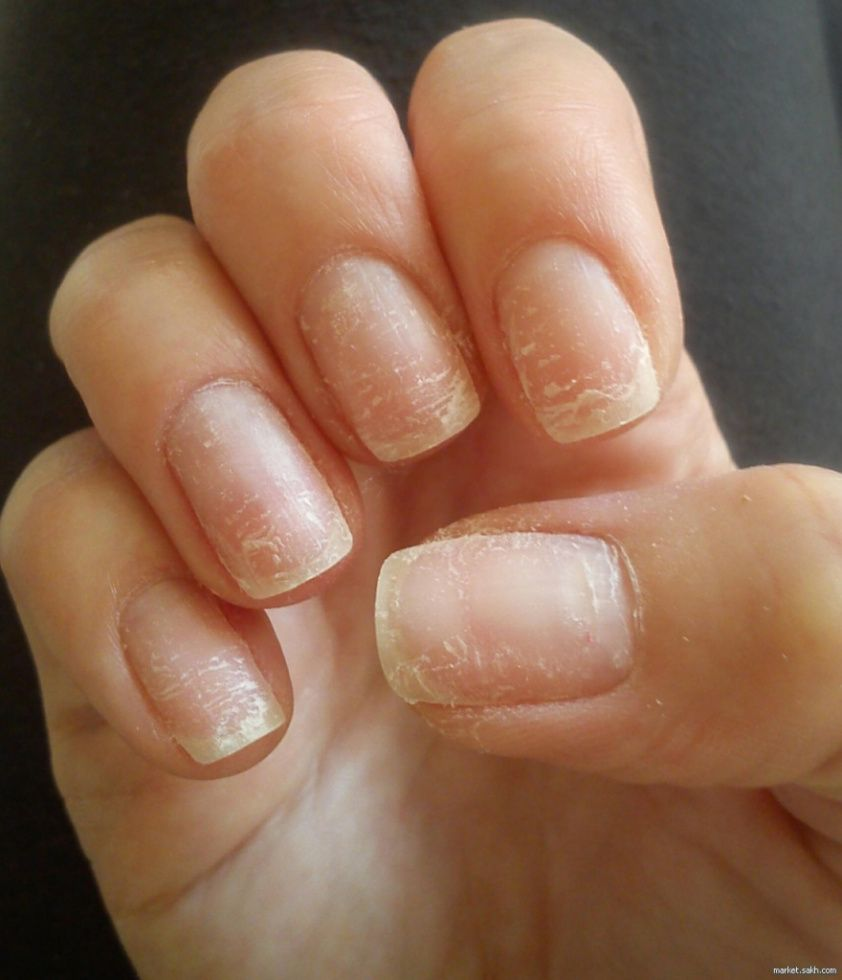Болезни ногтей на руках: фото и описание, причины возникновения и симптомы заболеваний, принципы их лечения и профилактики