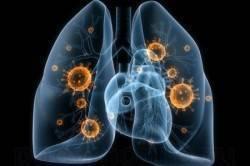 Насколько эффективна флюорография при воспалении легких