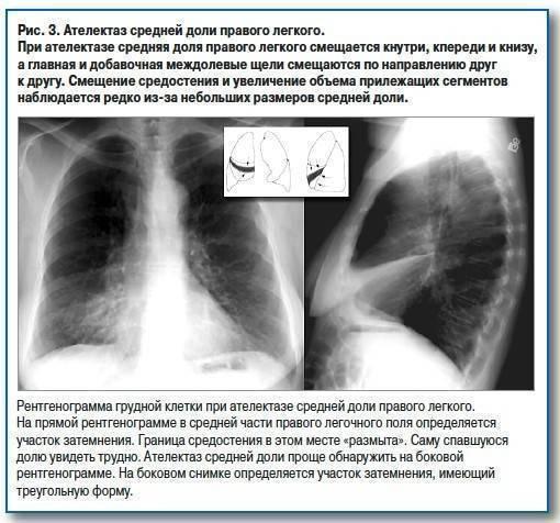Затяжная пневмония: причины заболевания, основные симптомы, лечение и профилактика