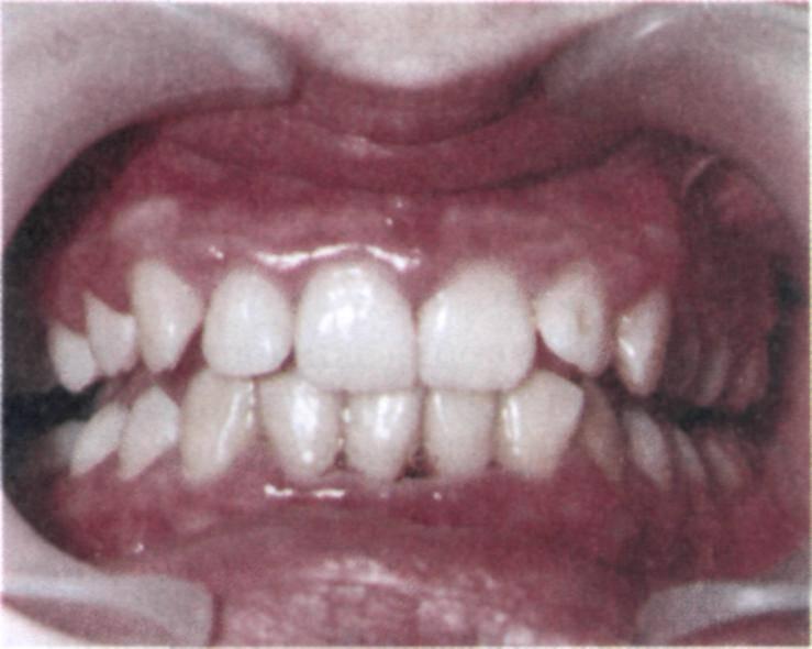 Почему зубы потемнели? изменение цвета эмали