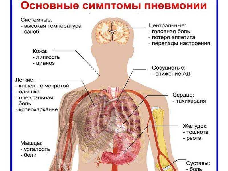 Что болит при воспалении легких и после него