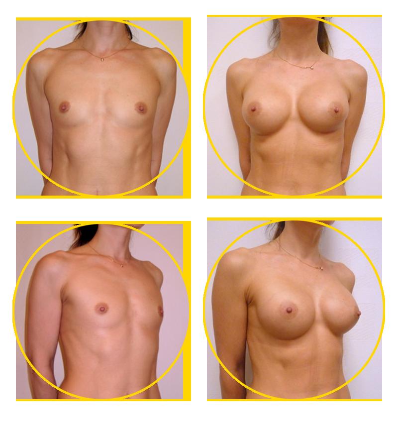 Коррекция груди или подтяжка груди
