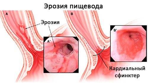 Питание при лечении эрозии желудка и двенадцатиперстной кишки: меню диеты
