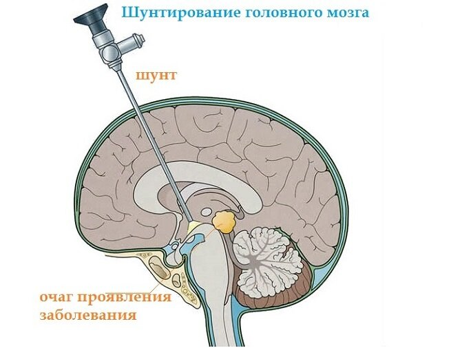 Ликворная (арахноидальная) киста головного мозга: симптомы, лечение и перспективы для пациента