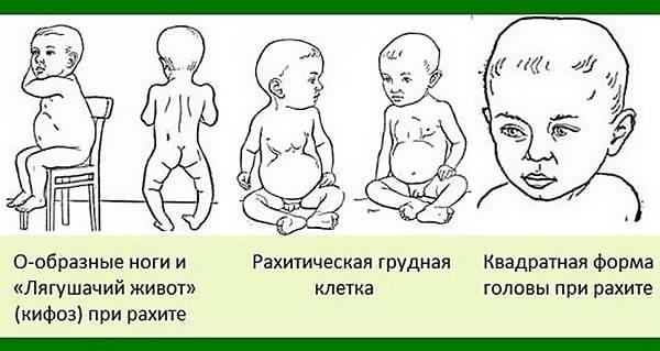 Рахит у детей: симптомы, лечение, последствия, профилактика