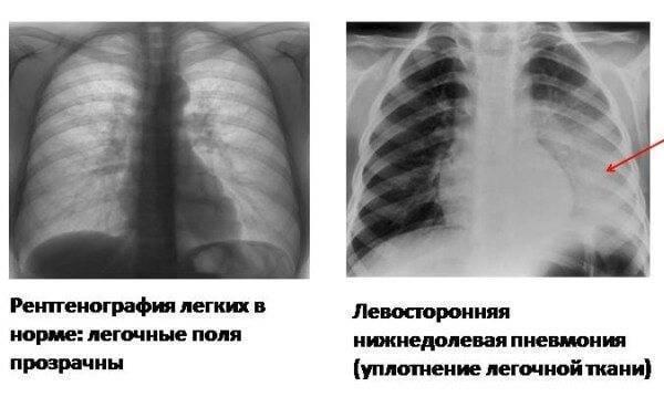 Три стадии течения пневмонии у взрослых. что делать, если болезнь не проходит?