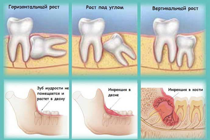 Сложное удаление зуба мудрости – нюансы проведения операции и возможные осложнения