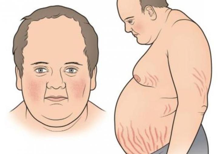 Синдром кушинга: развитие, симптомы, диагноз, лечение