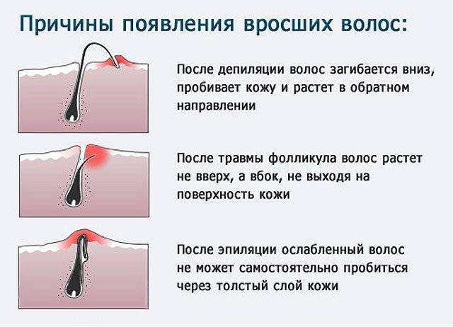 Пятна от вросших волос: причины, методы избавления, предотвращение, запреты