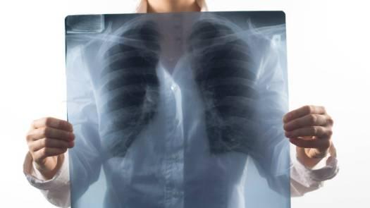 Туберкулез легких у взрослых: симптомы и лечение