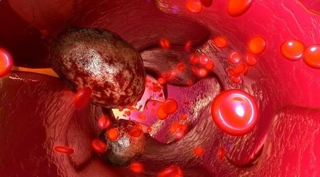 Метастазы при раке кишечника