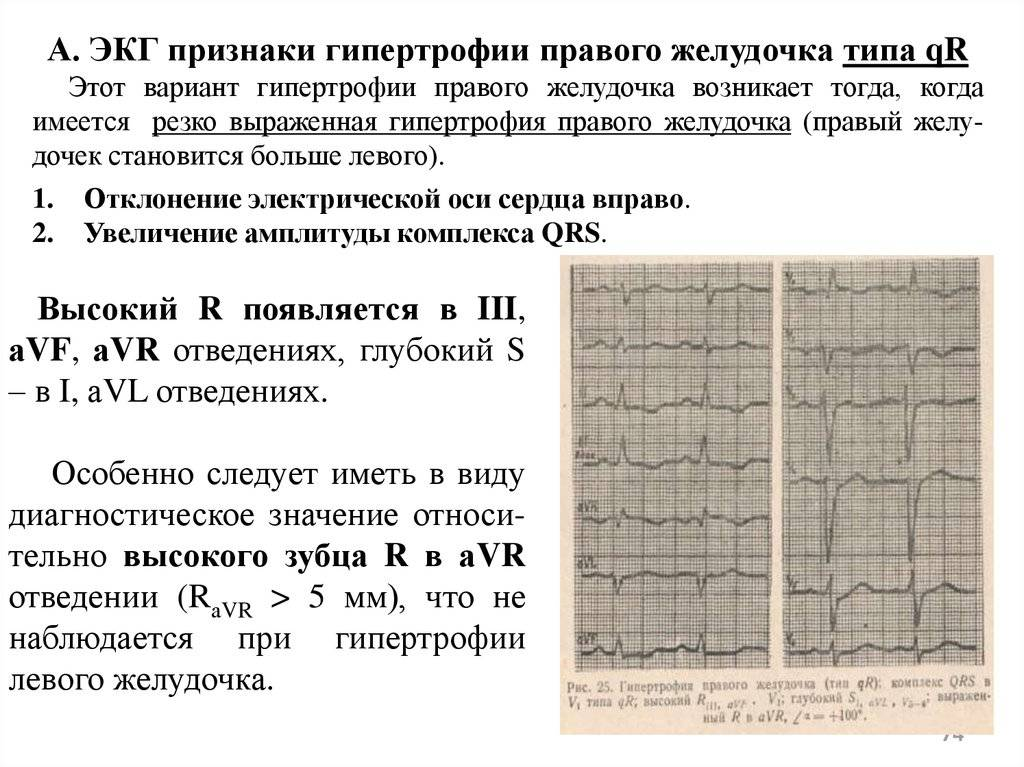 Гипертрофия левого желудочка сердца – причины, лечение, симптомы на экг. чем опасна гипертрофия левого желудочка сердца?