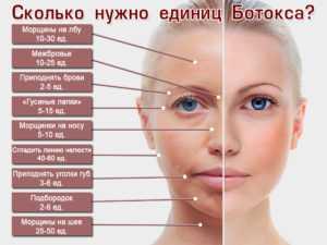 Ботокс и диспорт: что лучше, аналоги / mama66.ru