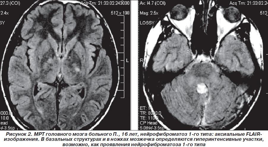 Как распознать нейрофиброматоз
