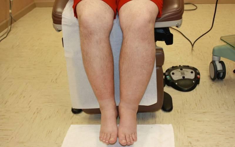 Лимфостаз нижних и верхних конечностей: признаки и лечение