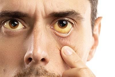 Застой желчи в желчном пузыре и внутрипеченочный холестаз