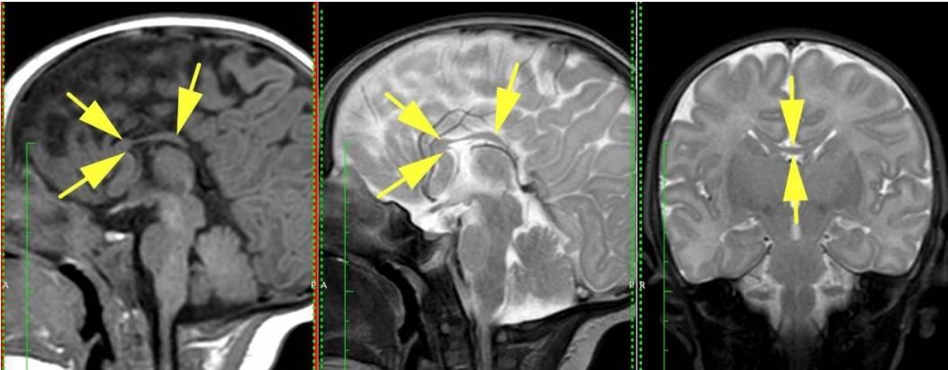 Агенезия (аплазия) почки: что это такое, причины, симптомы