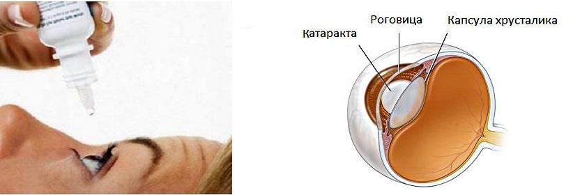 Каталин капли глазные инструкция цена отзывы
