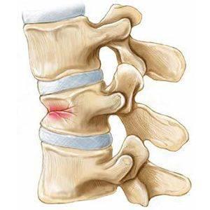 Что такое компрессионный перелом позвоночника: лечение и реабилитация после повреждения