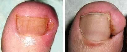 Что делать если гноится вросший ноготь на ноге?