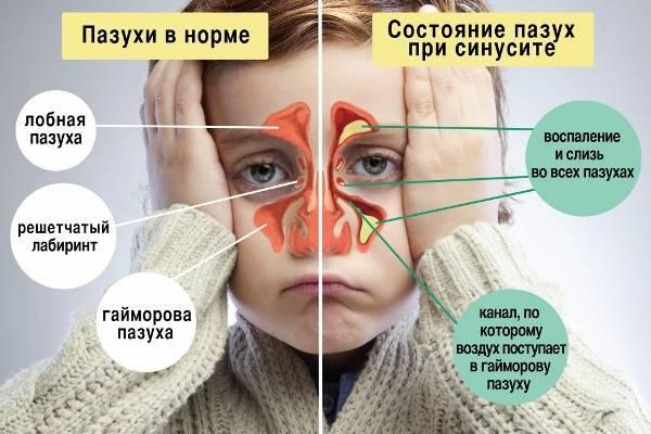 Чем лечить сухой кашель без температуры у ребенка