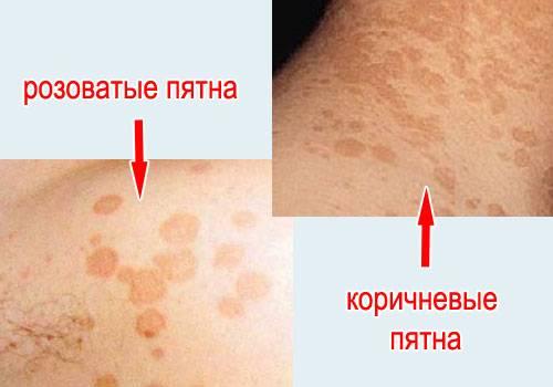 Псориаз кожи у человека: как выглядит на фото и видео, причины, признаки, симптомы, диагностика, лечение