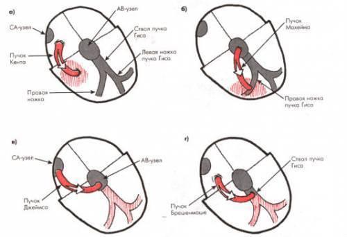 Синдром вольфа-паркинсона-уайта (wpw): причины, симптомы, как лечить
