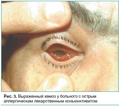 Аллергический конъюнктивит: причины, симптомы с фото и лечение заболевания